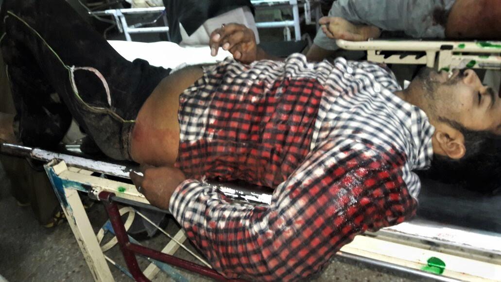 Azhar Iqbal on stretcher
