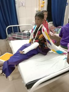 Sister Bundi with broken hand
