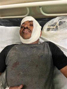 Injured Isaac Paulose