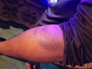Pastor Indresh Kumar Gautam's arm