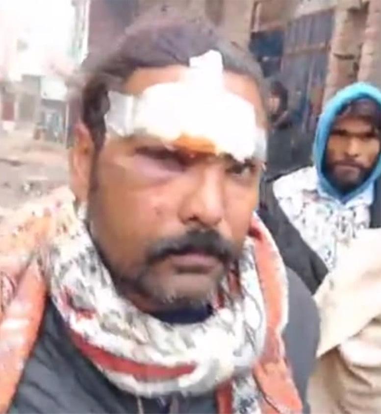 Injured Christian from Khadim colony